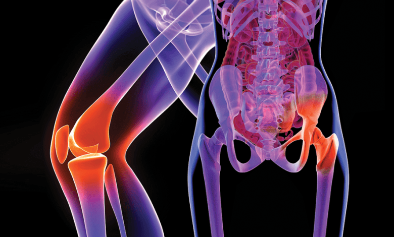 Hip and Knee Orthopaedic Surgical Implants